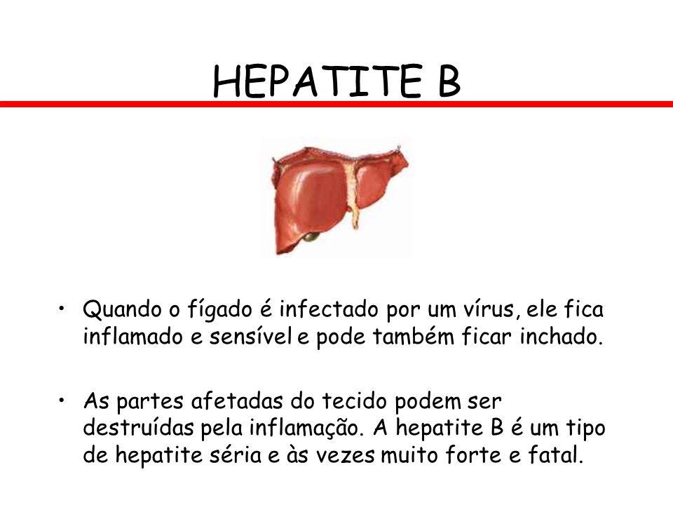 HEPATITE B Quando o fígado é infectado por um vírus, ele fica inflamado e sensível e pode também ficar inchado.