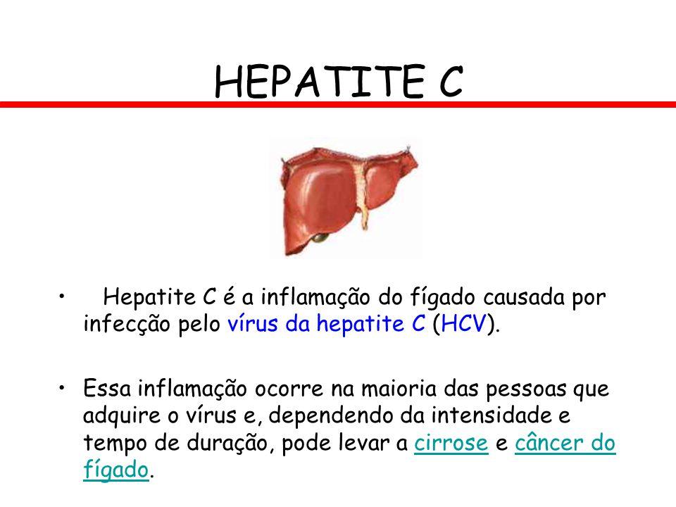 HEPATITE C Hepatite C é a inflamação do fígado causada por infecção pelo vírus da hepatite C (HCV).