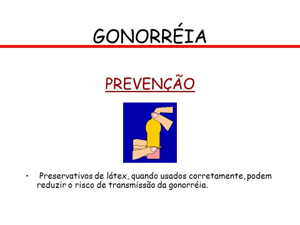 GONORRÉIA PREVENÇÃO.