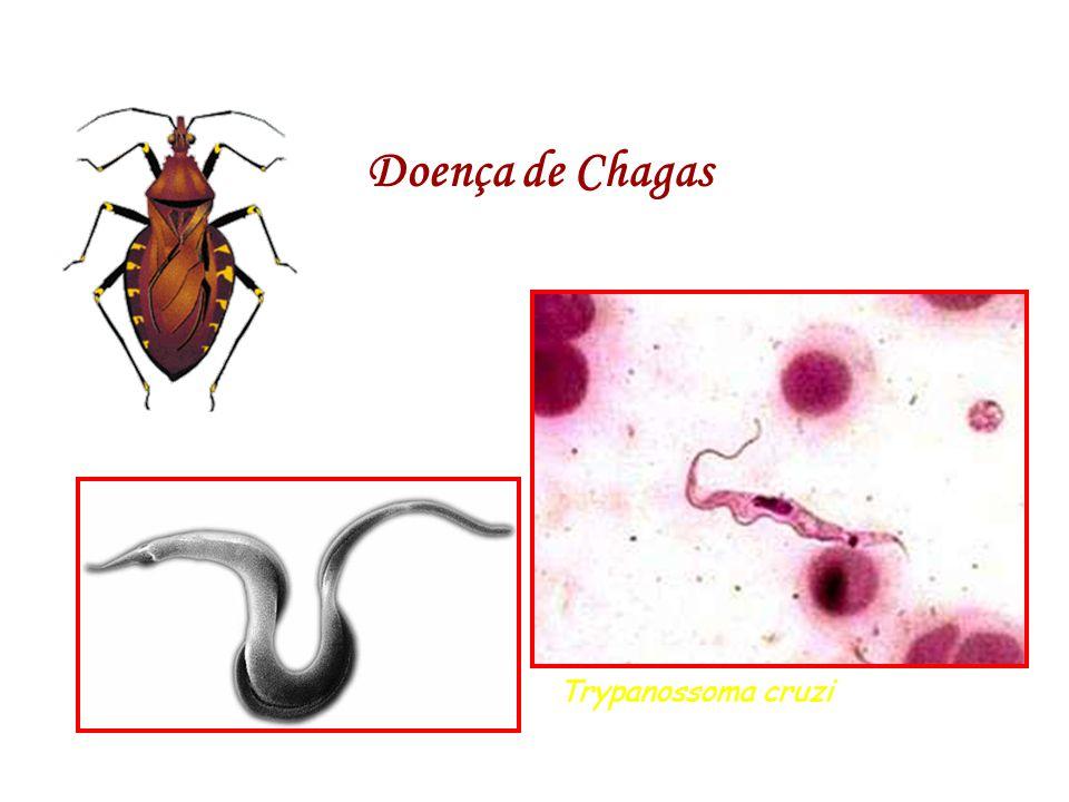 Doença de Chagas Trypanossoma cruzi