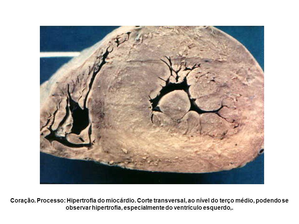 Coração. Processo: Hipertrofia do miocárdio