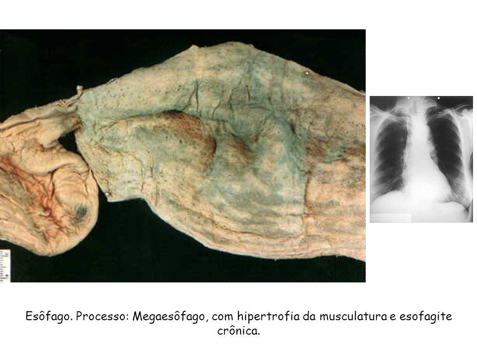 Esôfago. Processo: Megaesôfago, com hipertrofia da musculatura e esofagite crônica.