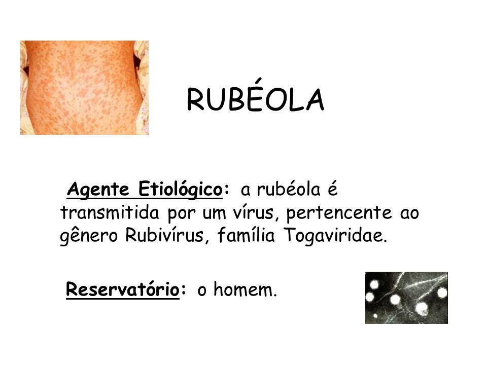 RUBÉOLA Agente Etiológico: a rubéola é transmitida por um vírus, pertencente ao gênero Rubivírus, família Togaviridae.