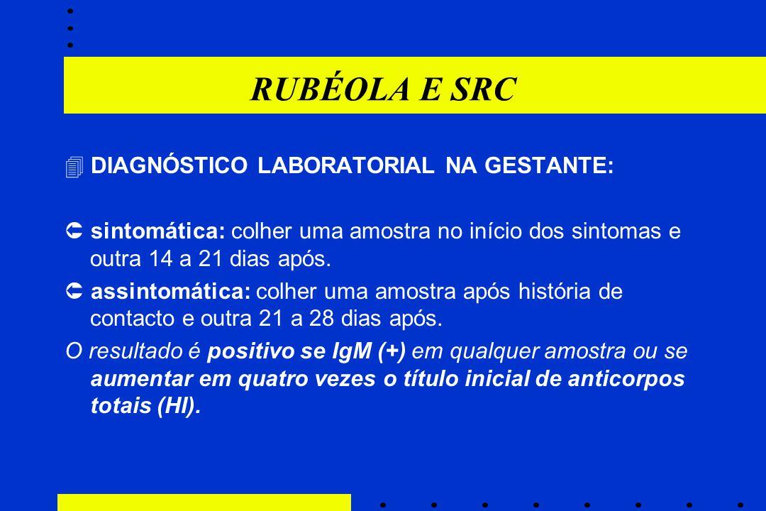 RUBÉOLA E SRC  DIAGNÓSTICO LABORATORIAL NA GESTANTE: