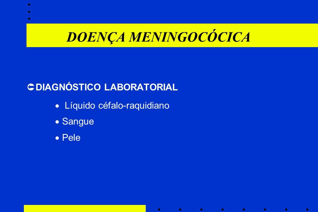 DOENÇA MENINGOCÓCICA DIAGNÓSTICO LABORATORIAL