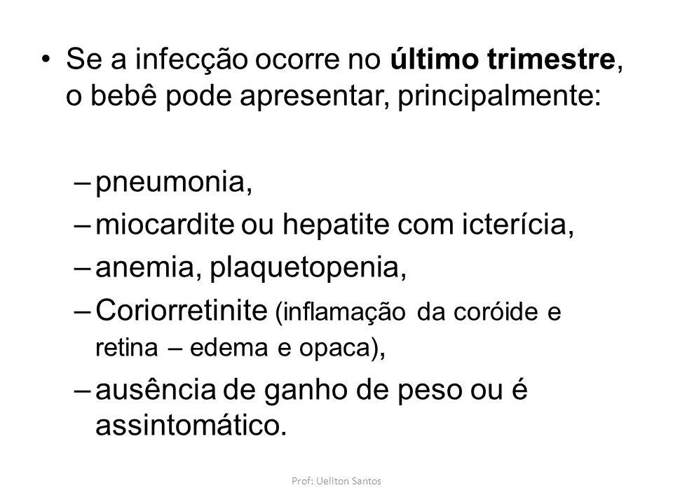 miocardite ou hepatite com icterícia, anemia, plaquetopenia,