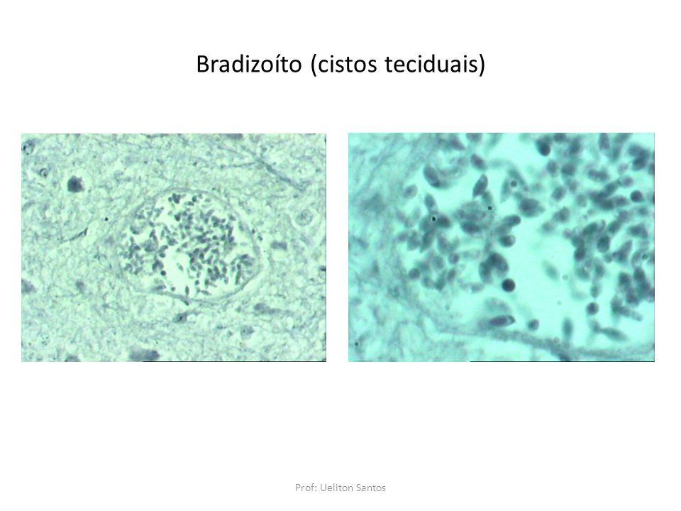 Bradizoíto (cistos teciduais)