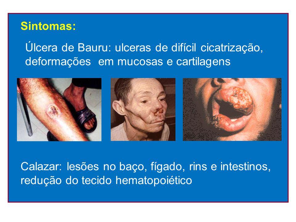 Sintomas: Úlcera de Bauru: ulceras de difícil cicatrização, deformações em mucosas e cartilagens.