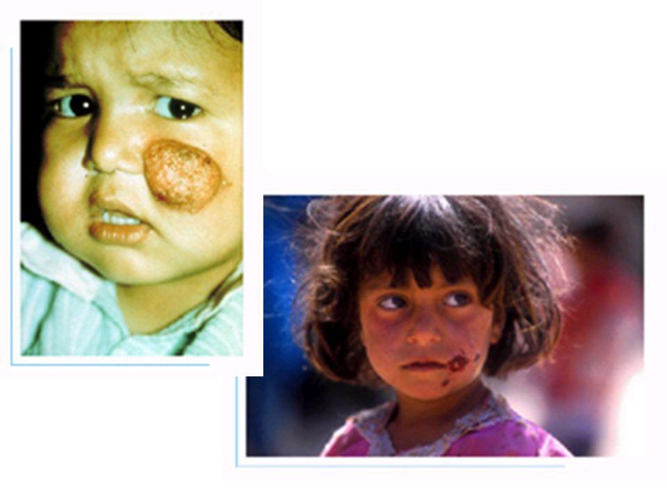 Crianças com Leishmaniose cutânea