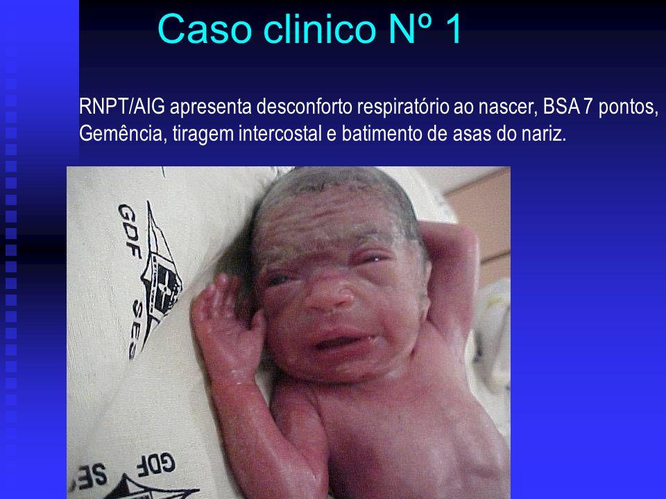 Caso clinico Nº 1 RNPT/AIG apresenta desconforto respiratório ao nascer, BSA 7 pontos, Gemência, tiragem intercostal e batimento de asas do nariz.