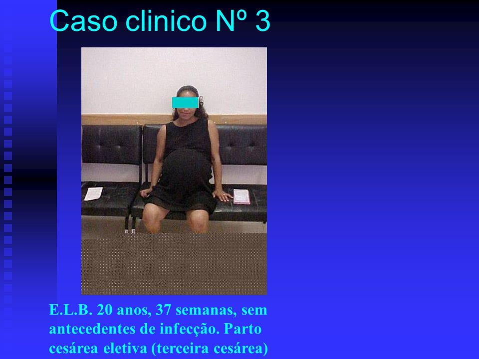 Caso clinico Nº 3 E.L.B. 20 anos, 37 semanas, sem