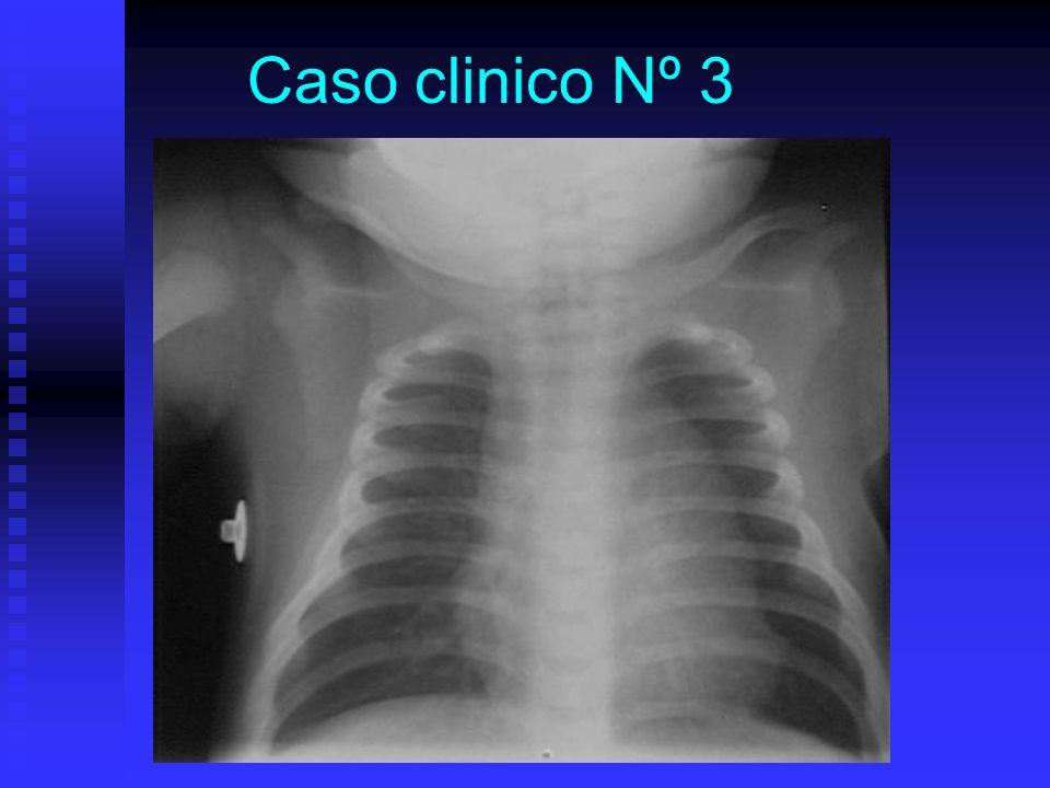 Caso clinico Nº 3