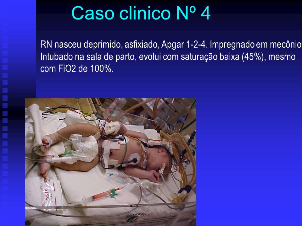 Caso clinico Nº 4 RN nasceu deprimido, asfixiado, Apgar 1-2-4. Impregnado em mecônio.