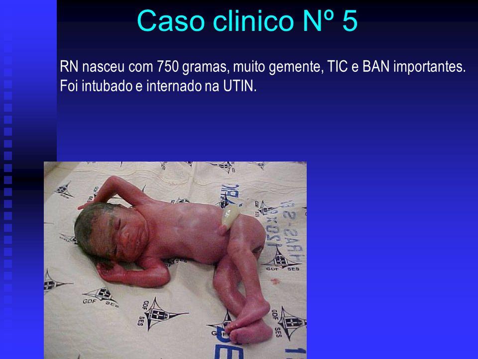 Caso clinico Nº 5 RN nasceu com 750 gramas, muito gemente, TIC e BAN importantes.