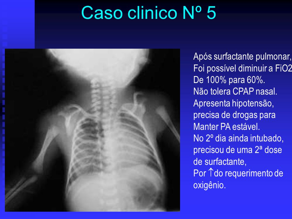 Caso clinico Nº 5 Após surfactante pulmonar,