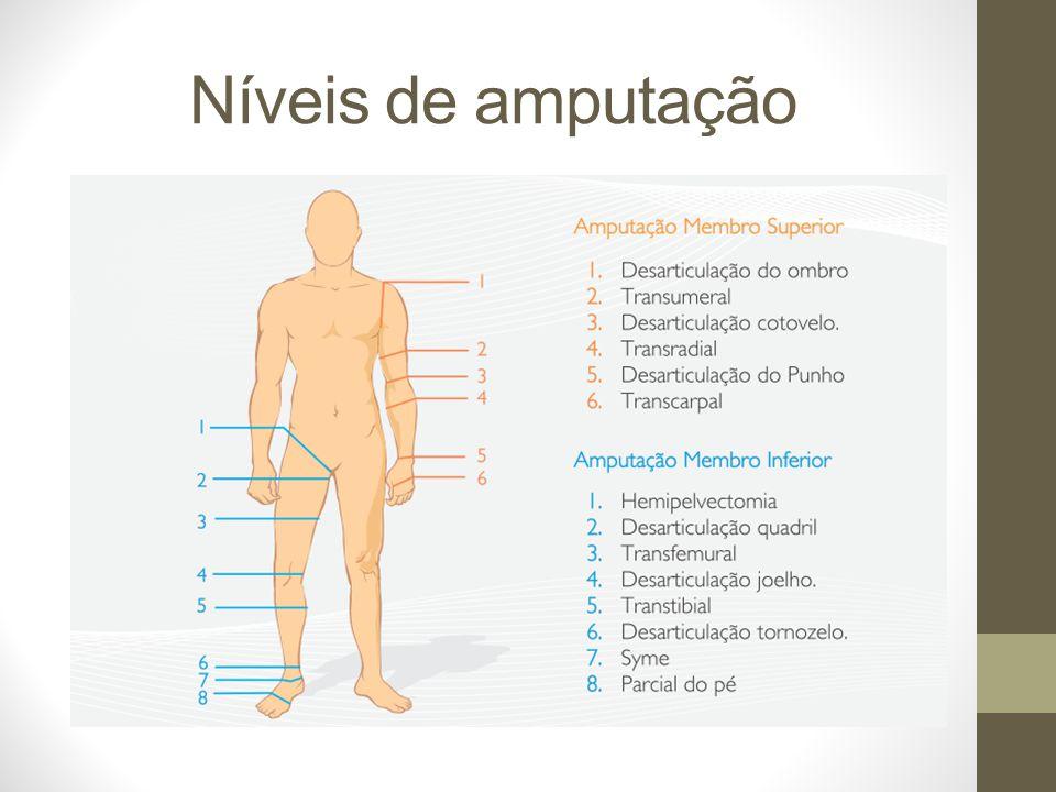 Níveis de amputação