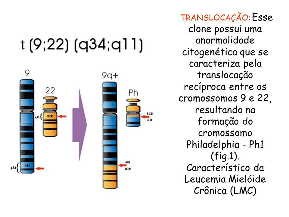 Característico da Leucemia Mielóide Crônica (LMC)
