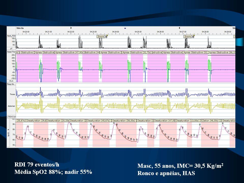RDI 79 eventos/h Média SpO2 88%; nadir 55% Masc, 55 anos, IMC= 30,5 Kg/m2 Ronco e apnéias, HAS