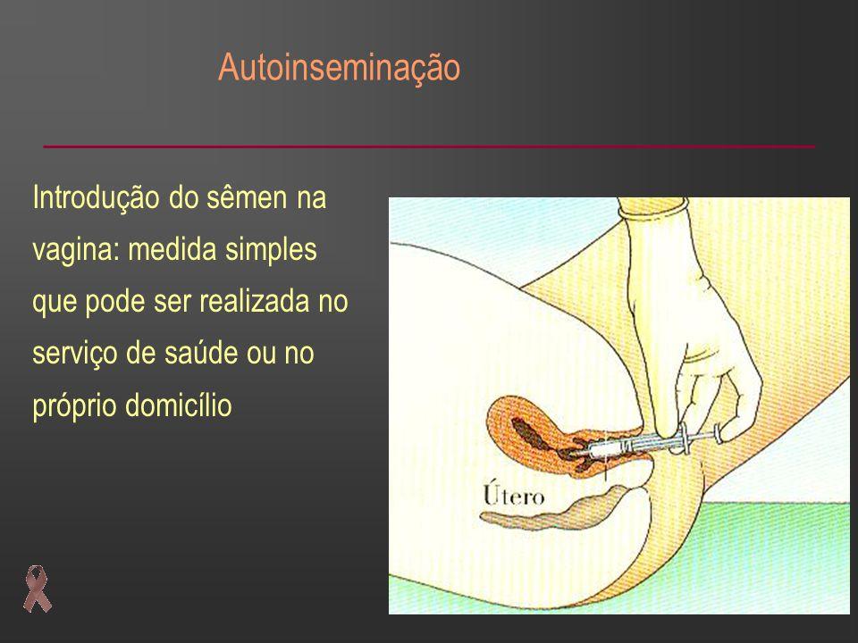 Autoinseminação Introdução do sêmen na vagina: medida simples que pode ser realizada no serviço de saúde ou no próprio domicílio.
