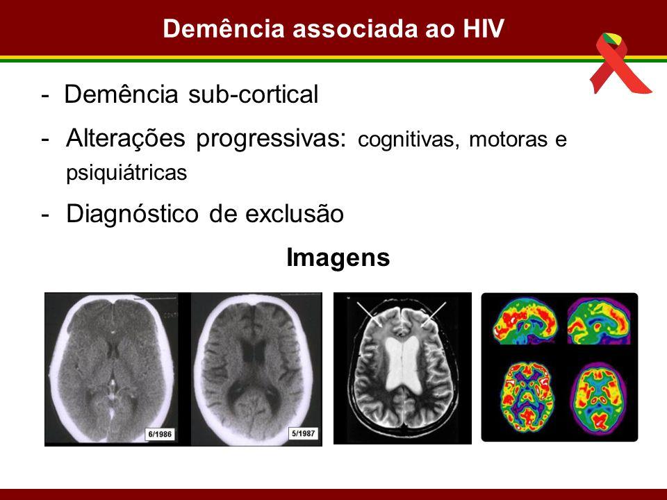 Demência associada ao HIV