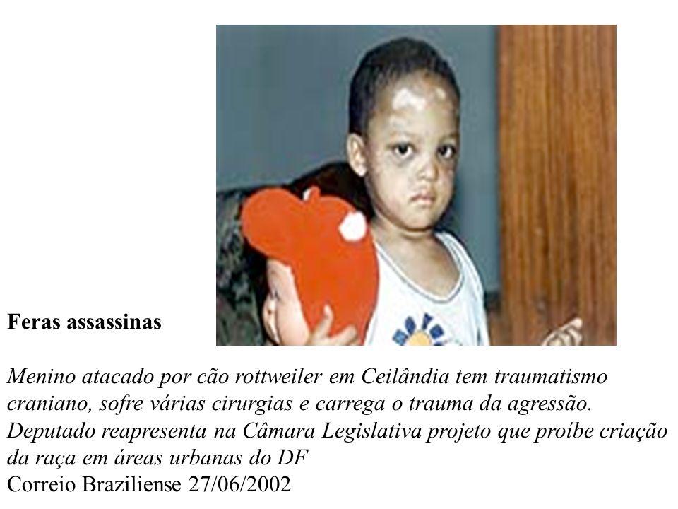 Feras assassinas Menino atacado por cão rottweiler em Ceilândia tem traumatismo craniano, sofre várias cirurgias e carrega o trauma da agressão.