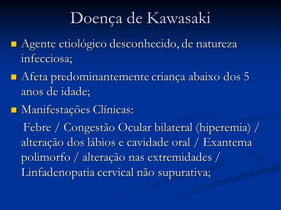 Doença de Kawasaki Agente etiológico desconhecido, de natureza infecciosa; Afeta predominantemente criança abaixo dos 5 anos de idade;