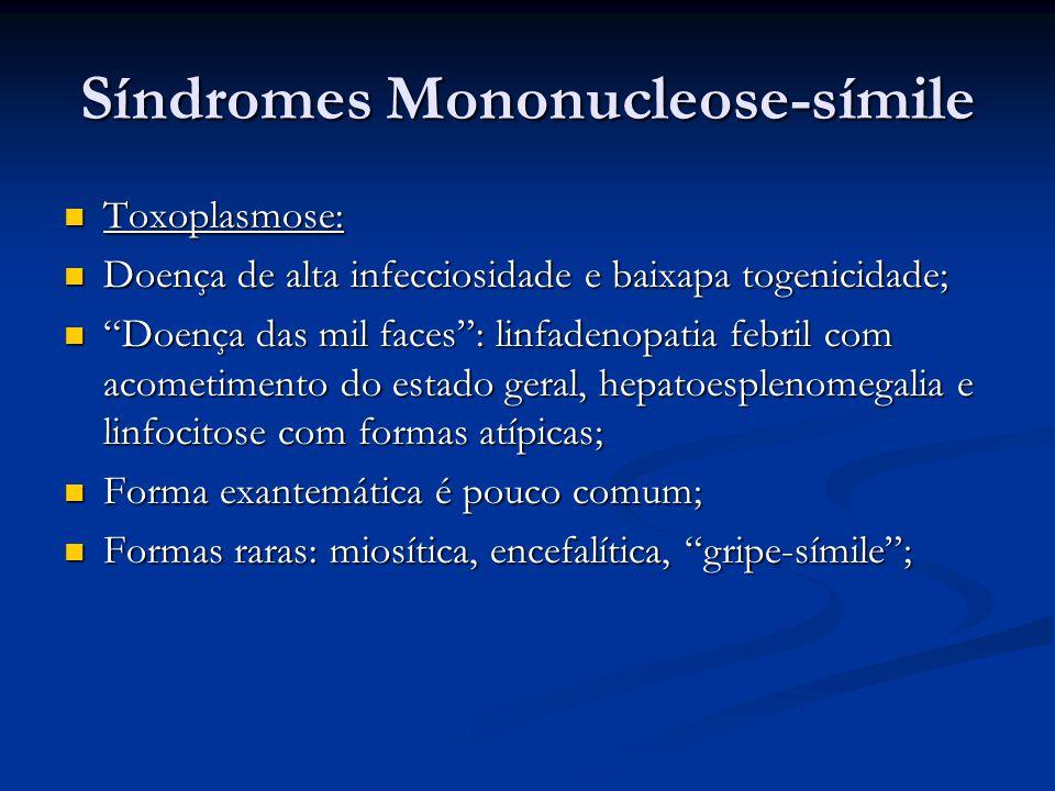 Síndromes Mononucleose-símile
