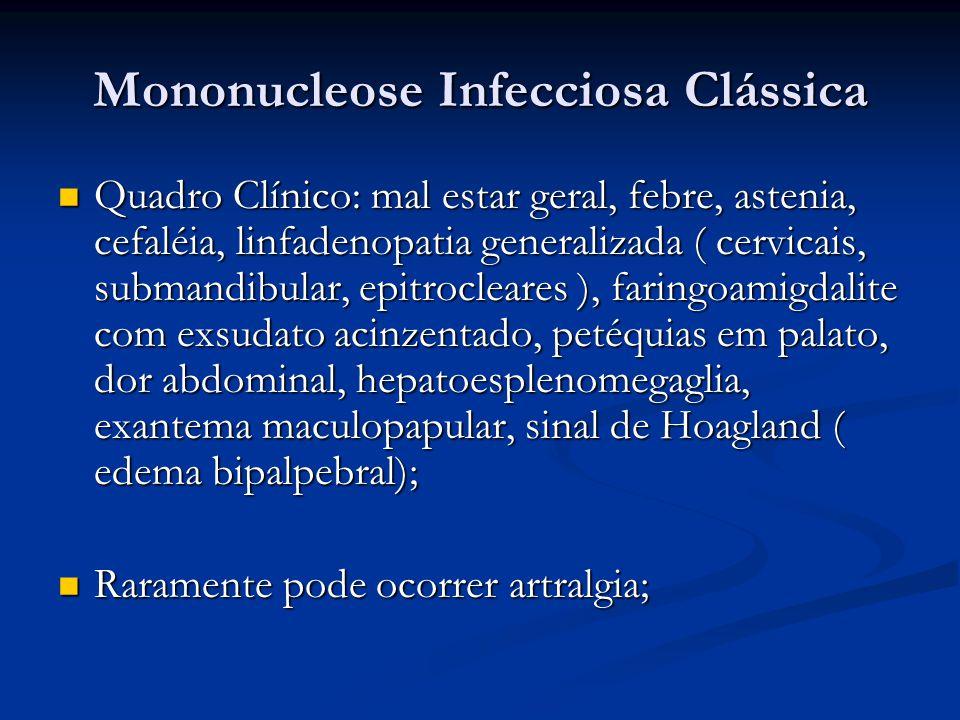 Mononucleose Infecciosa Clássica