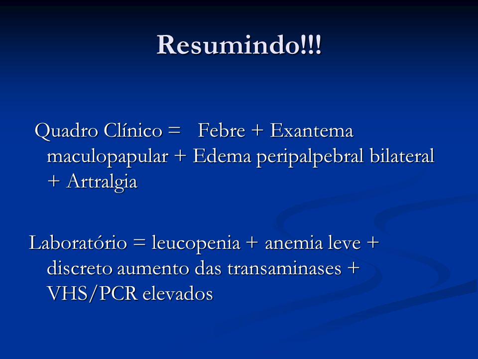 Resumindo!!! Quadro Clínico = Febre + Exantema maculopapular + Edema peripalpebral bilateral + Artralgia.