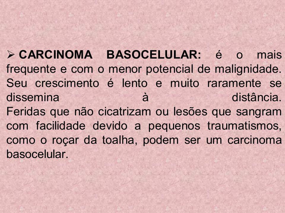 CARCINOMA BASOCELULAR: é o mais frequente e com o menor potencial de malignidade.