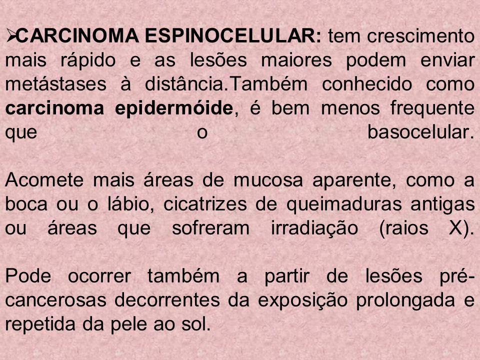 CARCINOMA ESPINOCELULAR: tem crescimento mais rápido e as lesões maiores podem enviar metástases à distância.Também conhecido como carcinoma epidermóide, é bem menos frequente que o basocelular.
