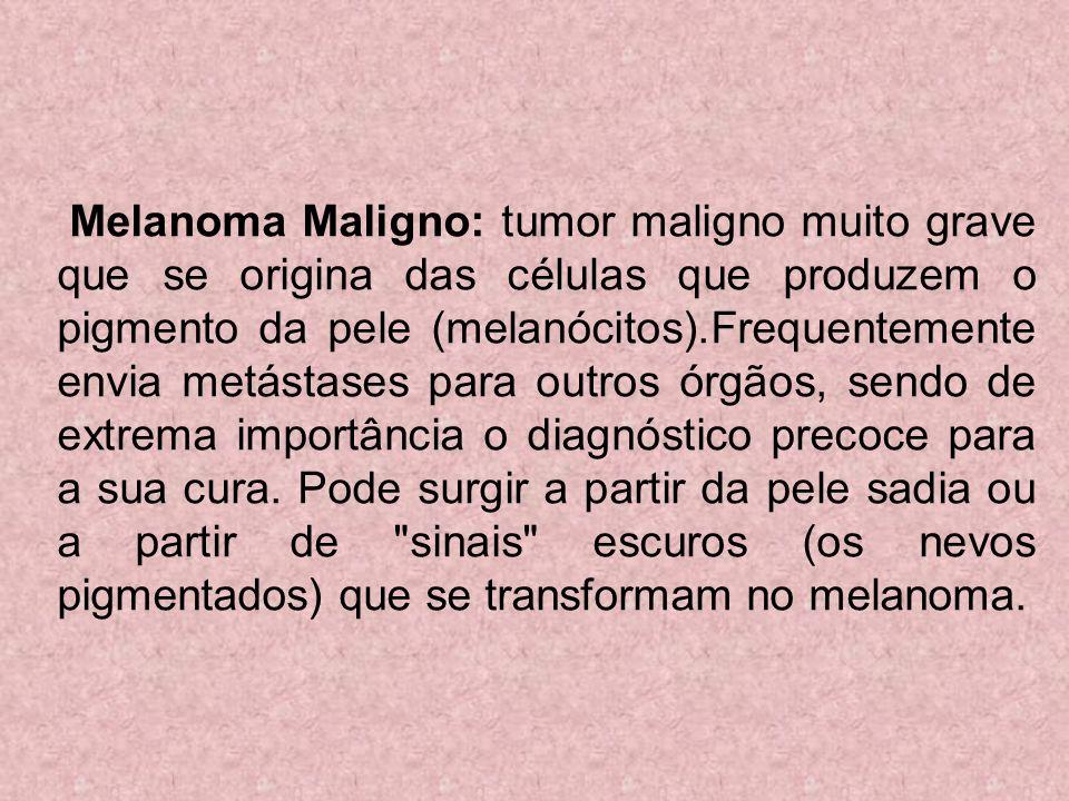Melanoma Maligno: tumor maligno muito grave que se origina das células que produzem o pigmento da pele (melanócitos).Frequentemente envia metástases para outros órgãos, sendo de extrema importância o diagnóstico precoce para a sua cura.