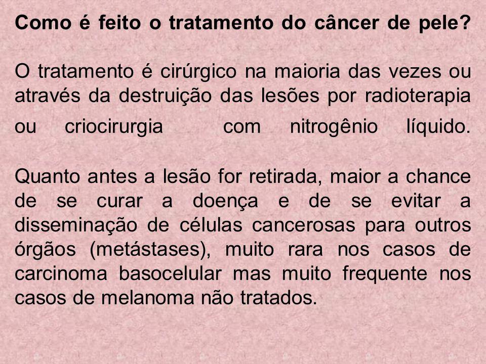 Como é feito o tratamento do câncer de pele