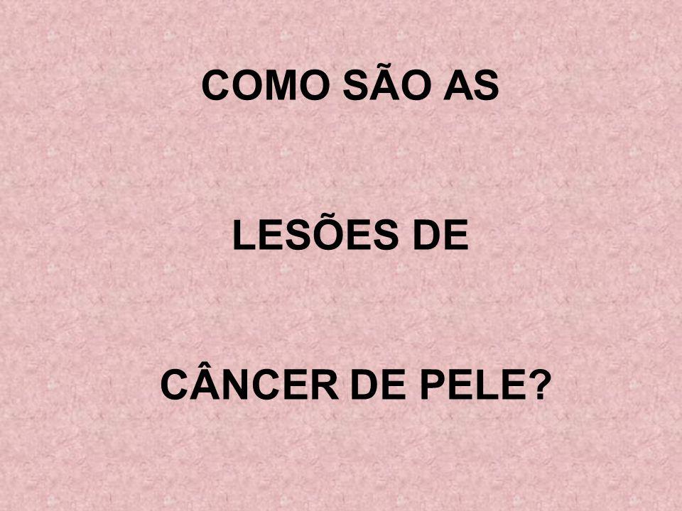 COMO SÃO AS LESÕES DE CÂNCER DE PELE