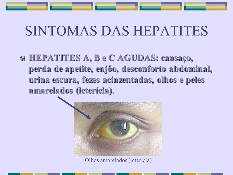 SINTOMAS DAS HEPATITES