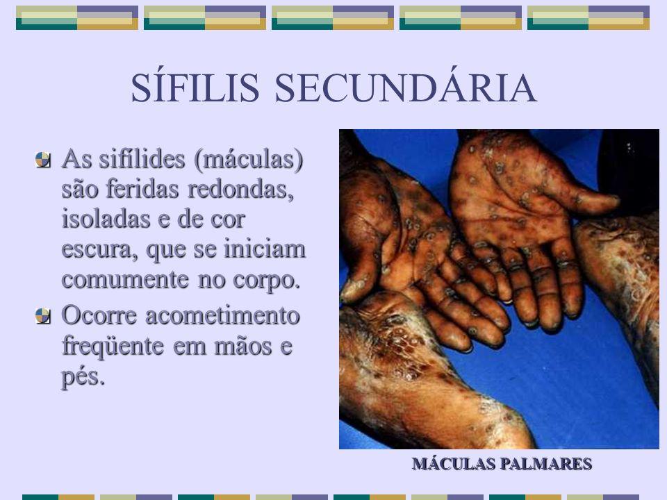 SÍFILIS SECUNDÁRIA As sifílides (máculas) são feridas redondas, isoladas e de cor escura, que se iniciam comumente no corpo.