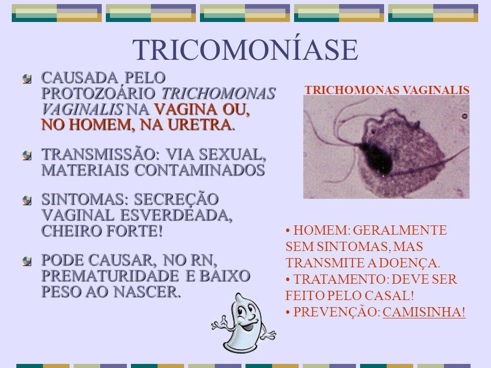 TRICOMONÍASE CAUSADA PELO PROTOZOÁRIO TRICHOMONAS VAGINALIS NA VAGINA OU, NO HOMEM, NA URETRA. TRANSMISSÃO: VIA SEXUAL, MATERIAIS CONTAMINADOS.