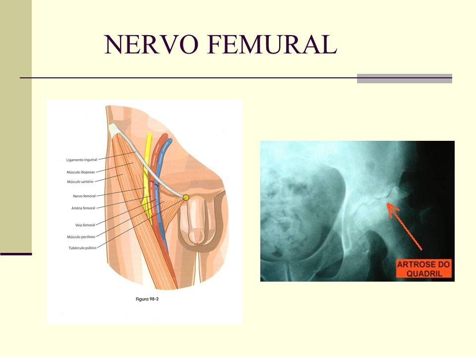 NERVO FEMURAL