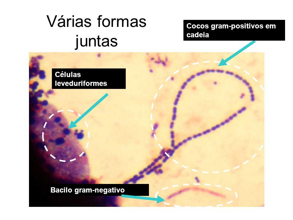 Várias formas juntas Cocos gram-positivos em cadeia