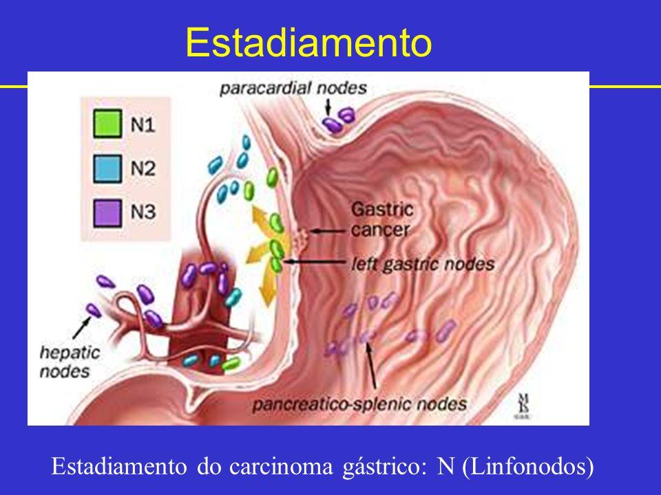 Estadiamento do carcinoma gástrico: N (Linfonodos)