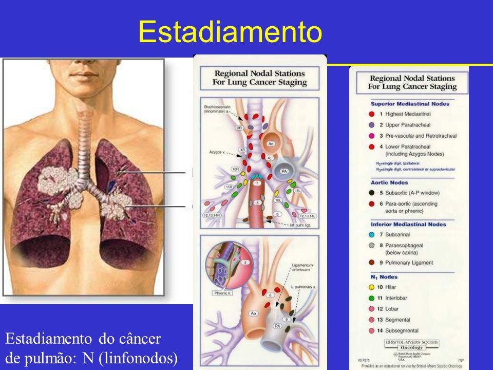Estadiamento Estadiamento do câncer de pulmão: N (linfonodos)