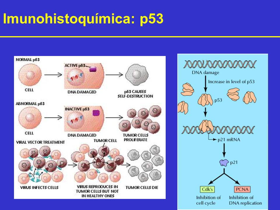 Imunohistoquímica: p53