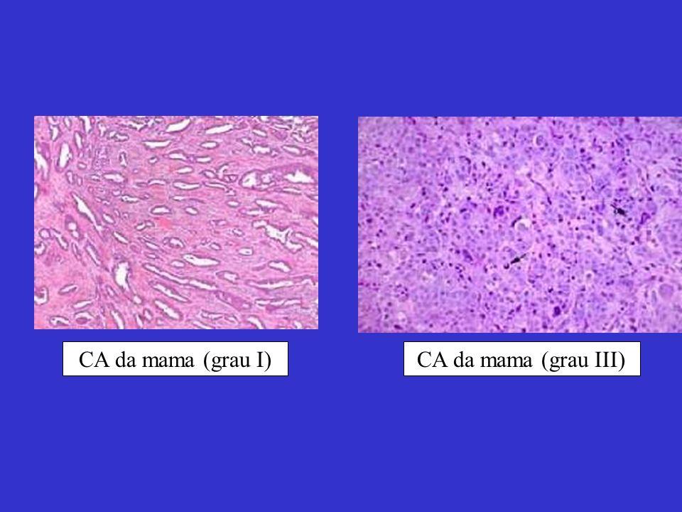 CA da mama (grau I) CA da mama (grau III)