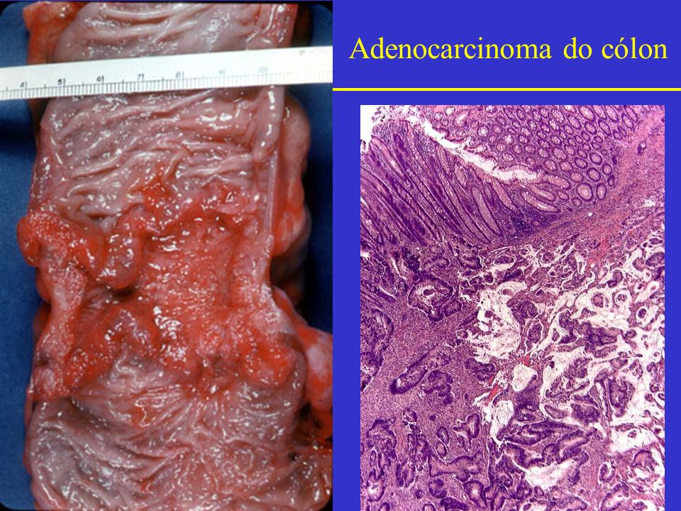 Adenocarcinoma do cólon