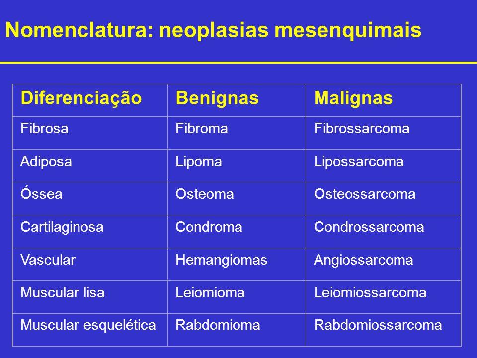 Nomenclatura: neoplasias mesenquimais