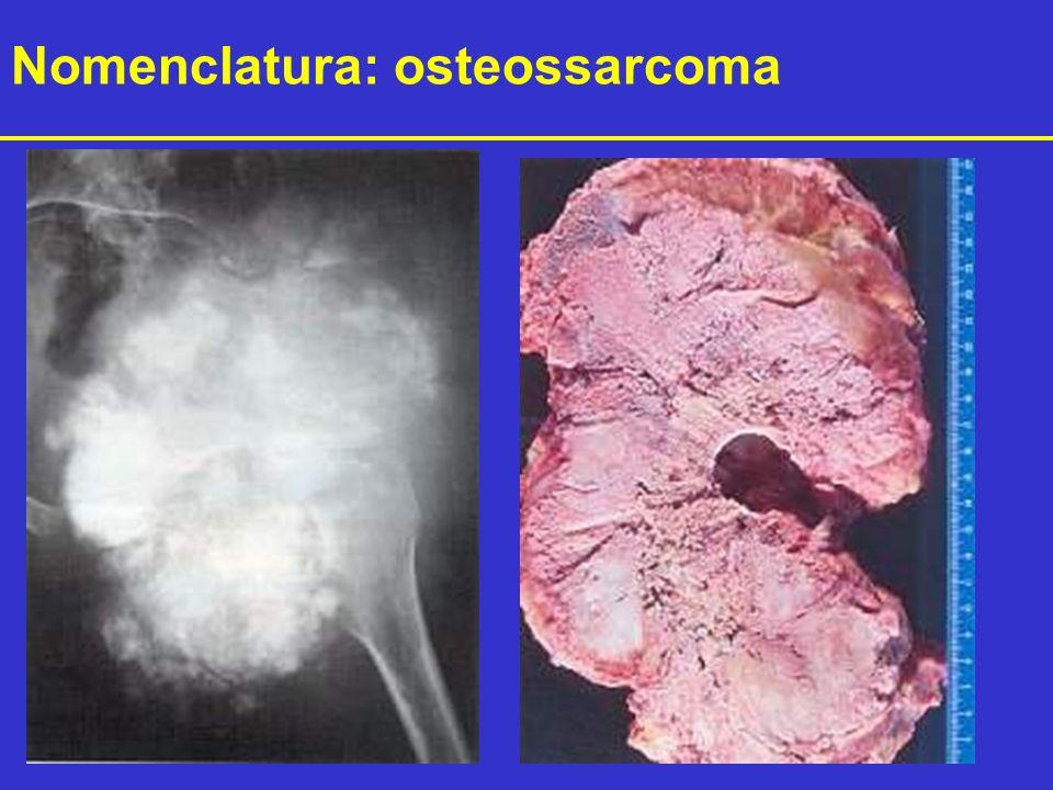 Nomenclatura: osteossarcoma