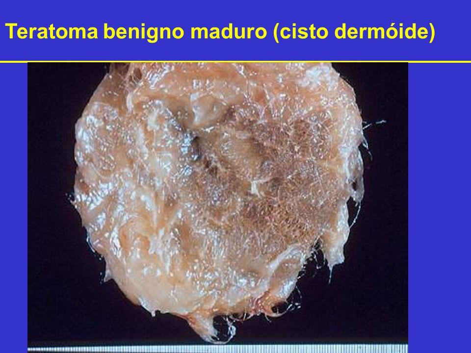 Teratoma benigno maduro (cisto dermóide)