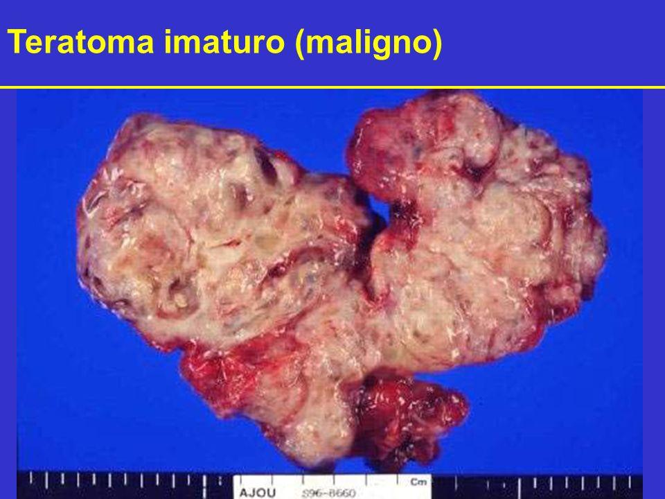 Teratoma imaturo (maligno)