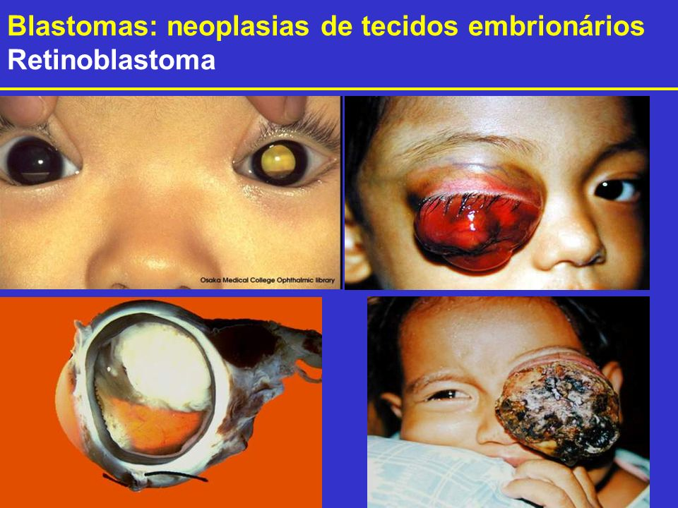 Blastomas: neoplasias de tecidos embrionários