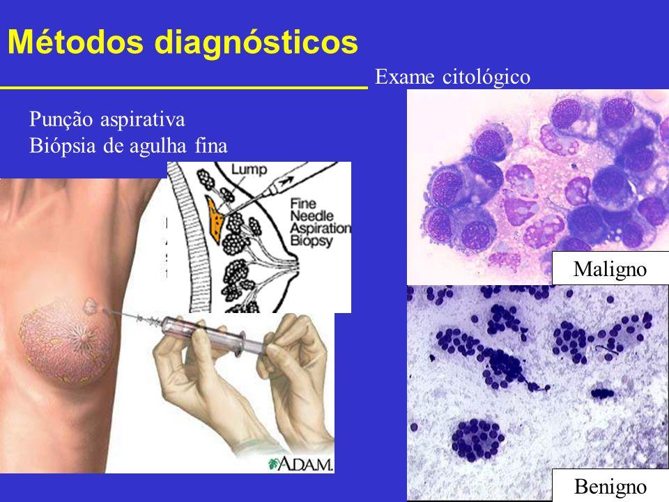 Métodos diagnósticos Exame citológico Punção aspirativa
